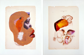 Wangechi Mutu, from Histology of Different Classes of Uterine Tumors (2006), 12 digital prints and mixed media collage, 23 x 17 inches each. Courtesy of the artist and the Susanne Vielmetter Los Angeles Projects, Los Angeles.